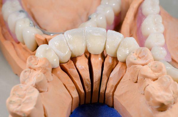 Die Zahnkronen in der Herstellung in einem Dentallabor in Hannover