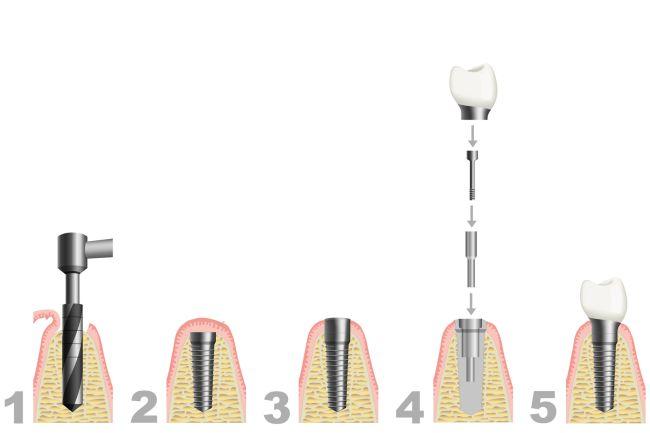 Aufbau eines Zahnimplantats in der Zahnarztpraxis Jguburia