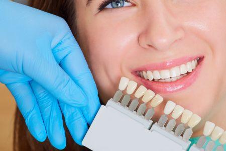 Zoom Bleaching für weiße Zähne in der Zahnarztpraxis Jguburia in Hannover Mitte