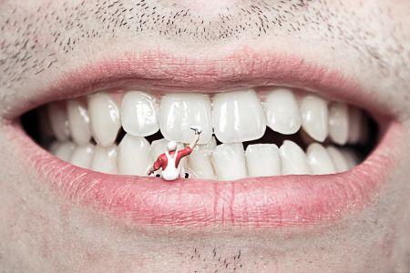Schaubild einer Zahnsanierung