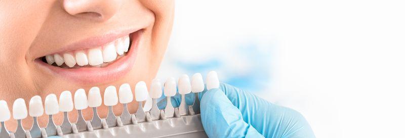 Ergebnis einer kosmetischen Zahnaufhellung