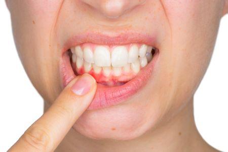 Gerötetes Zahnfleisch vor der Zahnfleischbehandlung